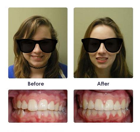 Before & After Braces Photos  Significance Orthodontics