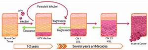 Progression Of Hpv Infection And Associated Disease  Hpv