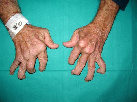 Doe Rã Sumã by Revolutionary Arthritis Treatment An End To Chronic