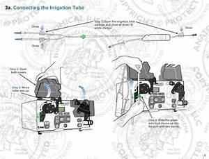 Duo Arthroscopic Pump Setup Manual