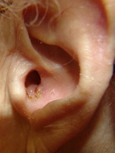 prurito prepuzio interno otitis externa swimmer s ear causes symptoms