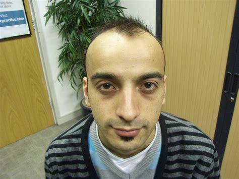 men shave  head tigerdroppingscom