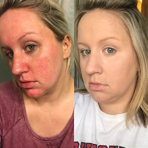 Reddit User Shows Before-and-After Photos Using It