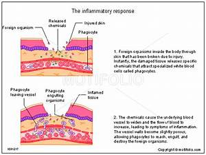 The Inflammatory Response Illustrations
