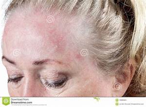 Zeer droge huid