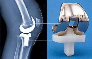 Step By Step Guide To Knee Replacement