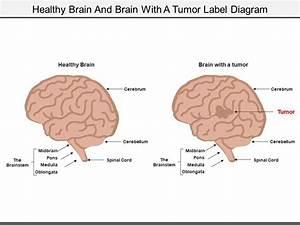 Label Diagram Of The Brain