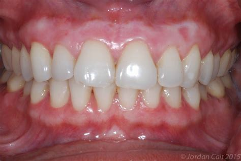 what color should my gums be gum bleaching improve the appearance of your gums