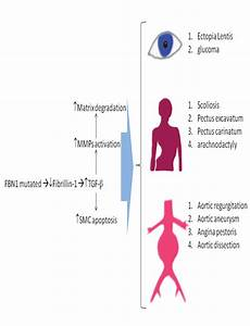 Schematic View Of Marfan Syndrome Pathophysiology  Mutation In Fbn1