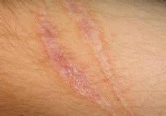 Skin assessment (PICS) Flashcards | Quizlet