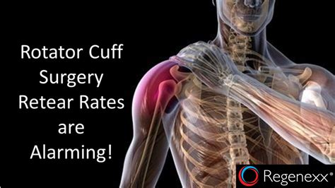 Rotator Cuff Surgery Retear Rates Are Alarming