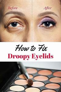 How to Fix Droopy Lids - How to Correct Drooping Eyelids
