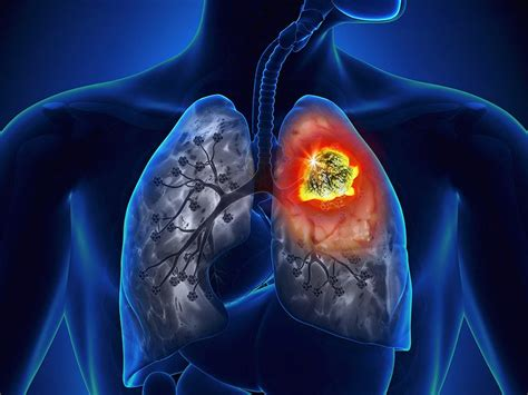 durvalumab  stage iii lung cancer  important advance