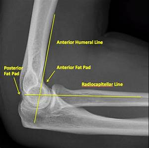 Radial Head Fracture – Core EM