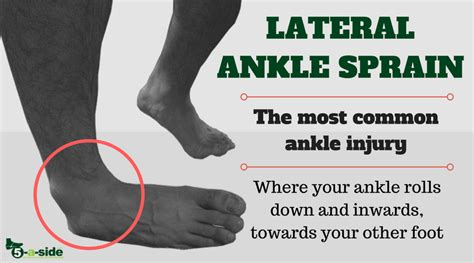 ankle injuries  simple guide  fixing    sidecom