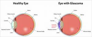 Glaucoma: What Seniors Should Know - Home Care Blog by CarefectHome ... Glaucoma