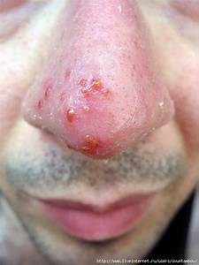 Герпес на губах лечение бородавок