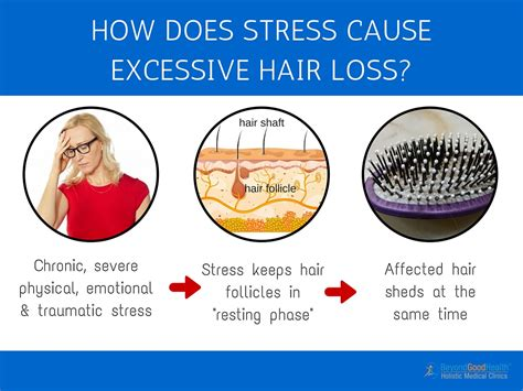 excessive hair shedding stress 3 top causes why your hair is falling out and what you can