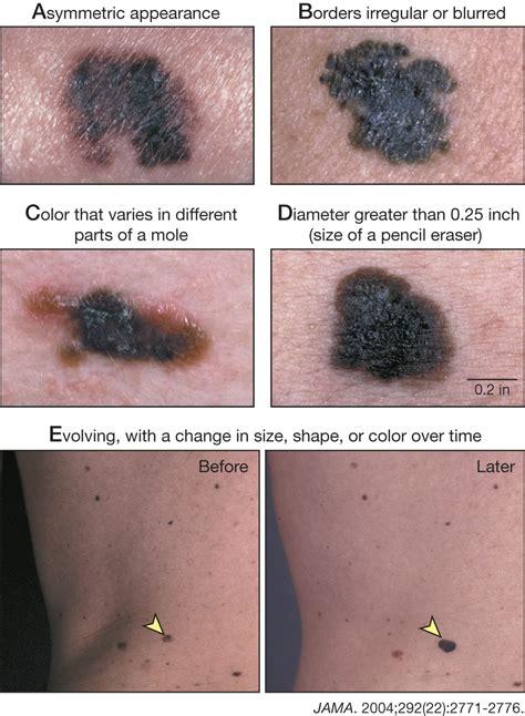 melanoma dermatology jama jama network