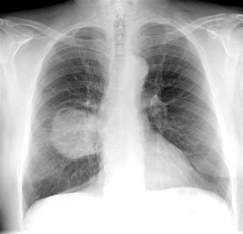 lung cancer ray medical imaging cane ltd photograph disease 8th which uploaded