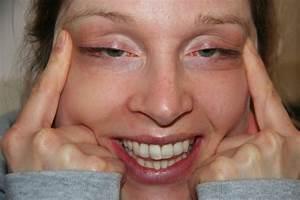 gezichtscreme met botox