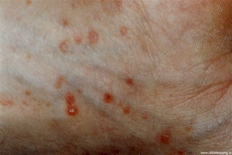 Lichen Planus Pictures Pictures Photos