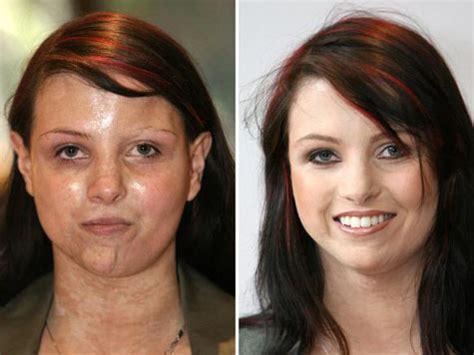 Diese Frau hat Multiple Sklerose  und schaffte