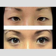 Double Eyelids For All Eye Types Without Surgery! Youtube