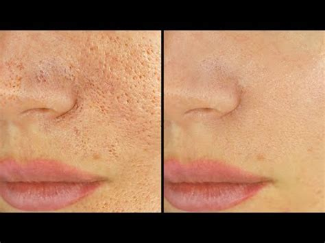 what can i use to unclog my kitchen sink 5 ways to shrink unclog pores immediately 9952