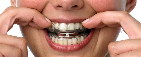 Oral Appliance Therapy Treatment