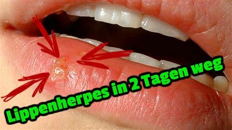 lippenherpes   tagen weg youtube