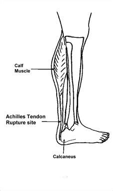 Golgi tendon organs are specialized receptors located in muscle tendons and are innervated by ib muscle afferents. Physics 111: Fundamental Physics I: The Physics of an ...
