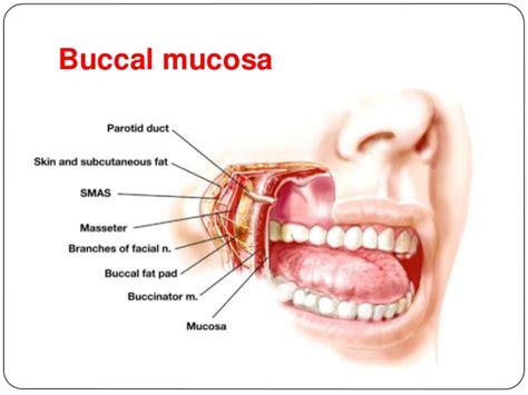 Nasal Floor by Carcinoma Tongue