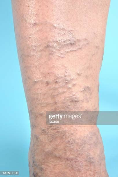 Varicose Vein Stock Photos And Pictures Getty Images