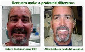 People with Dentures Before and After