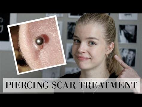 healing piercing bumps  home doovi