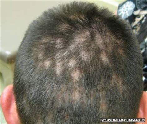 Syphilis  Primary Care Dermatology Society Uk
