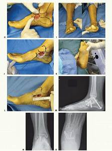 Medial Ankle  Deltoid Ligament Reconstruction