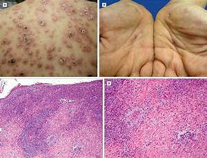 Diffuse Eruption Of Necrotic Papules And Nodules