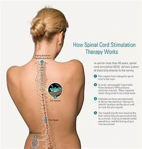 26 Best Images About My Spinal Fusion Journey On Pinterest