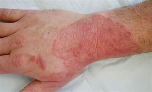 Candida - Veel vage gezondheidsklachten wijzen naar een