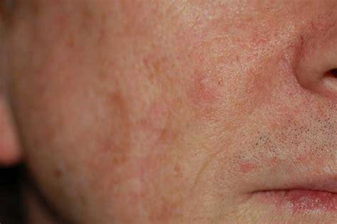 patient  dr michelle yagoda nyc facial plastic surgeon