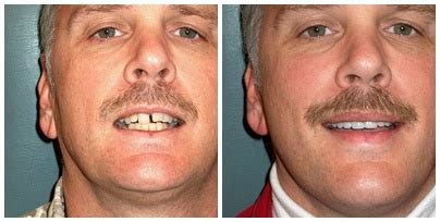 schuman center dental aesthetics  creve coeur mo
