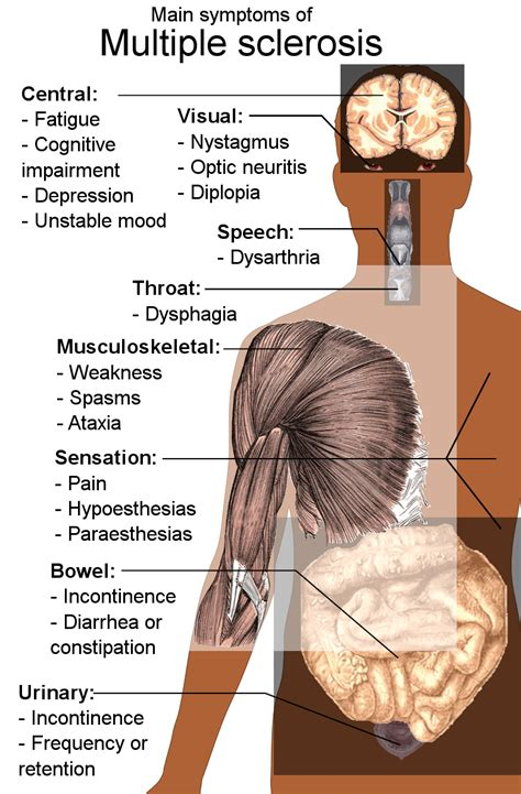 Symptoms, Causes And Treatments Of Ms  Harrow Ms Therapy. Boat Signs. Road Us Signs Of Stroke. Permit Driver Decals. Pittsburgh Steelers Stickers. Date Libra Signs Of Stroke. Plaza Logo. Sailfish Decals. Cumputer Logo