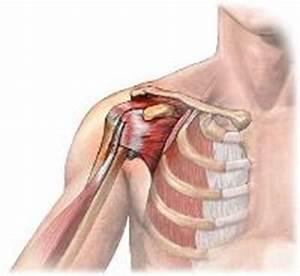 Боль в плечевом суставе от нагрузки