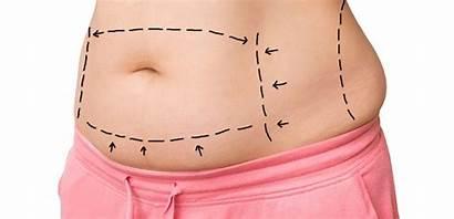 Tuck Tummy Abdominoplasty Surgery Plastic Cosmetic Fat