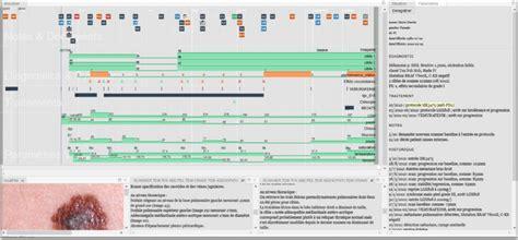 lifelines  visualizing patient records