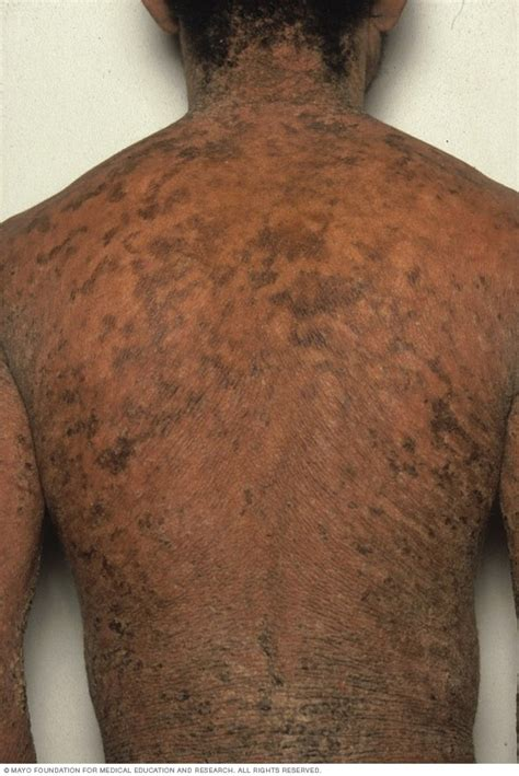 ichthyosis vulgaris symptoms   mayo clinic