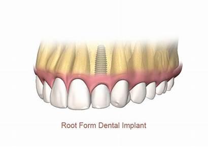 Dental Implant Mini Implants Bone