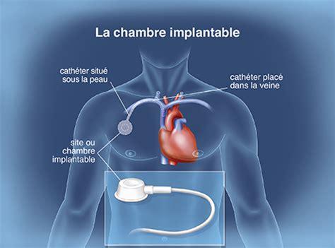 chambre implantable chimio la chimiothérapie classique traitements médicamenteux